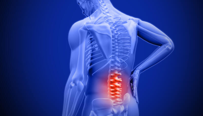 Lower Back Pain in London